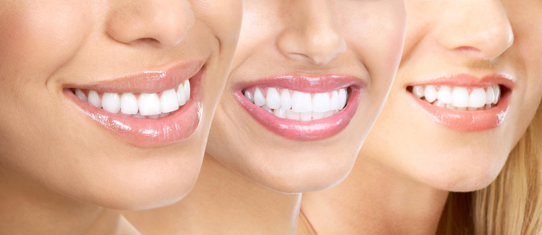 De beste mondverzorging op een natuurlijke manier