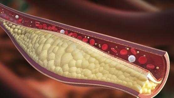 te hoog cholesterolgehalte dieet