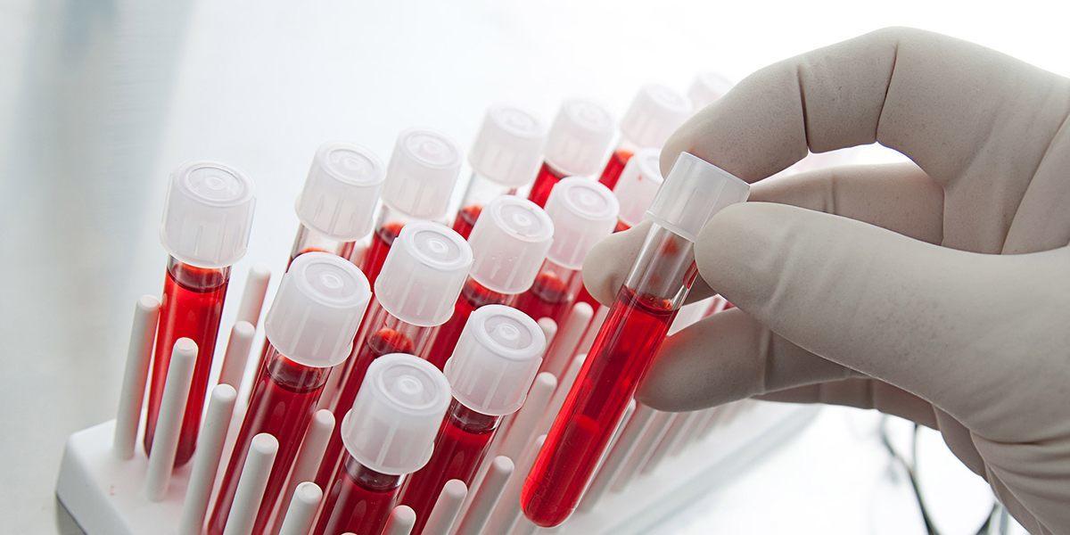 Nieuwe bloedtest herkent kanker
